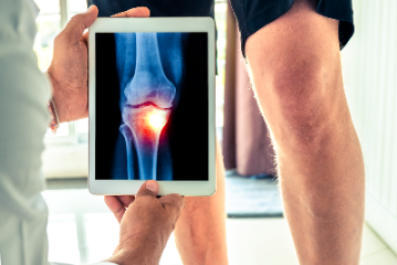 Is it time to get your knee replaced?